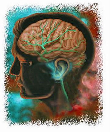 migraiiine